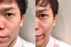 文京区で話題の、魔法の靴下【エアライズ】を履いてみたら、たった2分でガチで小顔になった!